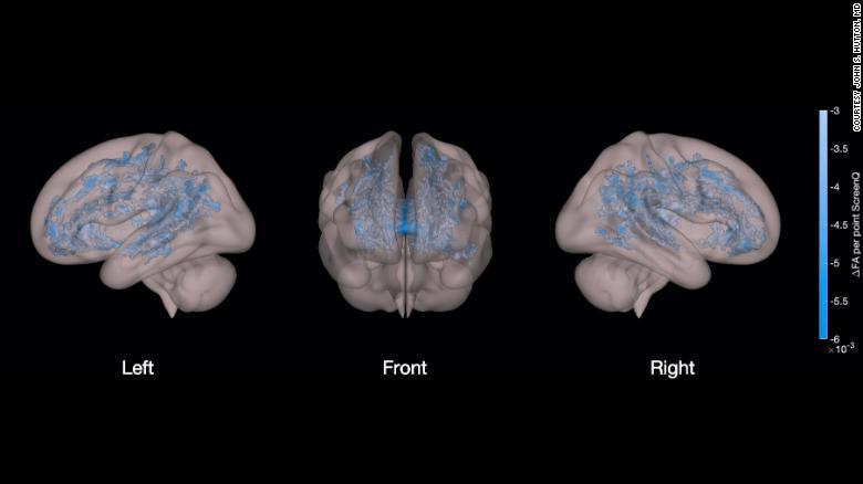 screen-time-lower-brain-development-preschoolers-wellness